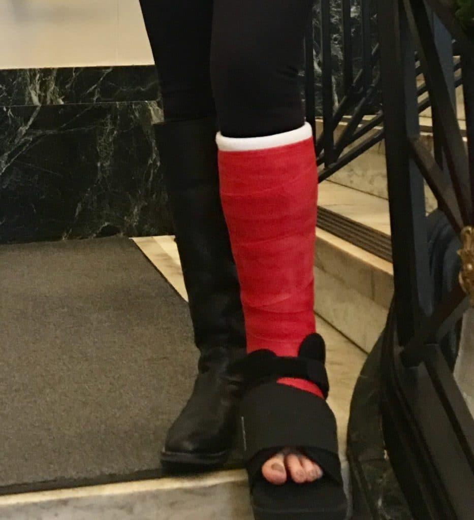 Leg Cast Fashion Tips